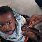 Vaccin BCG : à partir de quel âge ?