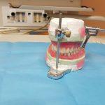 Deux tiers des Français ont recours aux prothèses dentaires