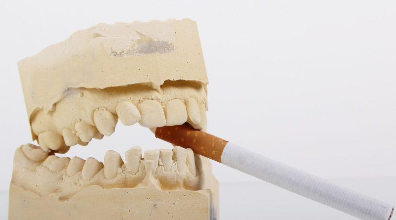 Le tabac, quels risques pour les dents
