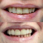 La zircone en dentisterie ?