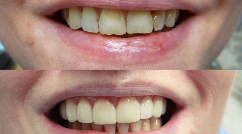 La zircone en dentisterie