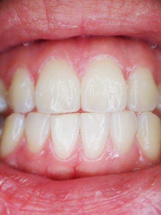 la gingivite