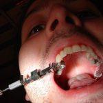 Les caries dentaires trop souvent négligées