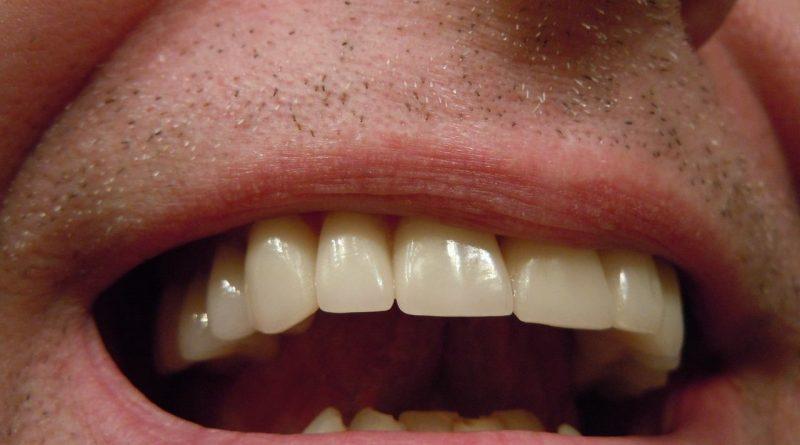 Pourquoi a-t-on besoin d'une couronne dentaire