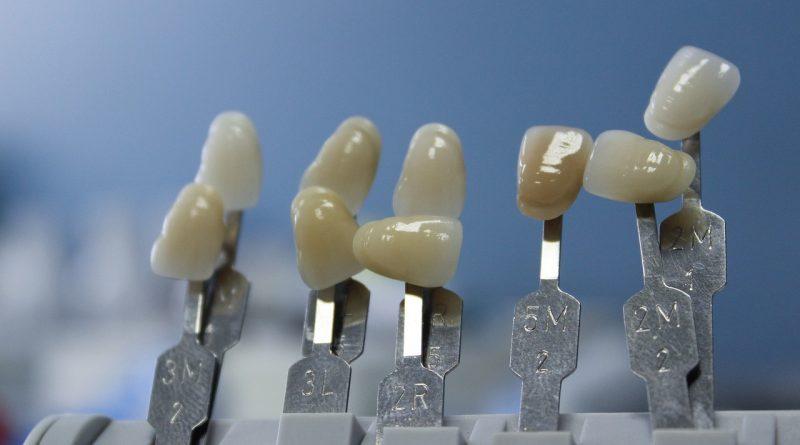 La longévité de la couronne dentaire