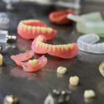 Prothèse dentaire : comment en prendre soin