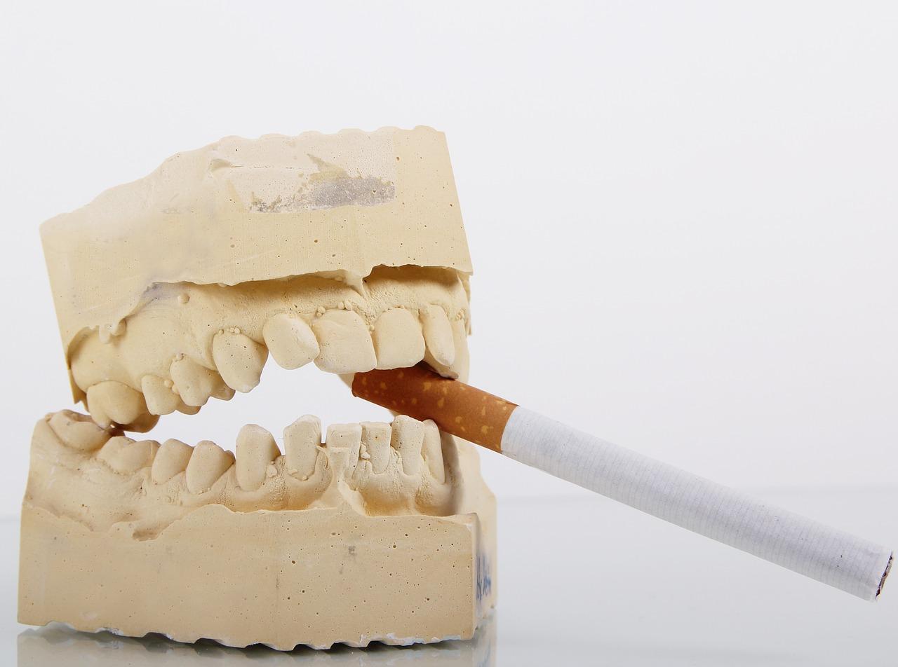 tabagisme et santé bucco-dentaire