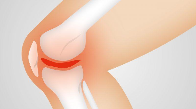 soulager la douleur d'une arthrose